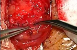 Microsurgical Varicocelectomy for Reccurrent Varicocele by Omer OGE, MD, Izmir
